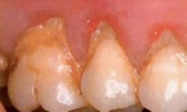 جرم و پلاک دندان